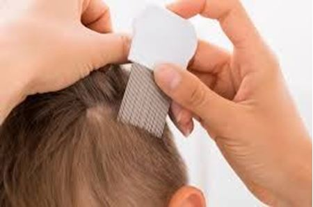 Picture for category Headlice
